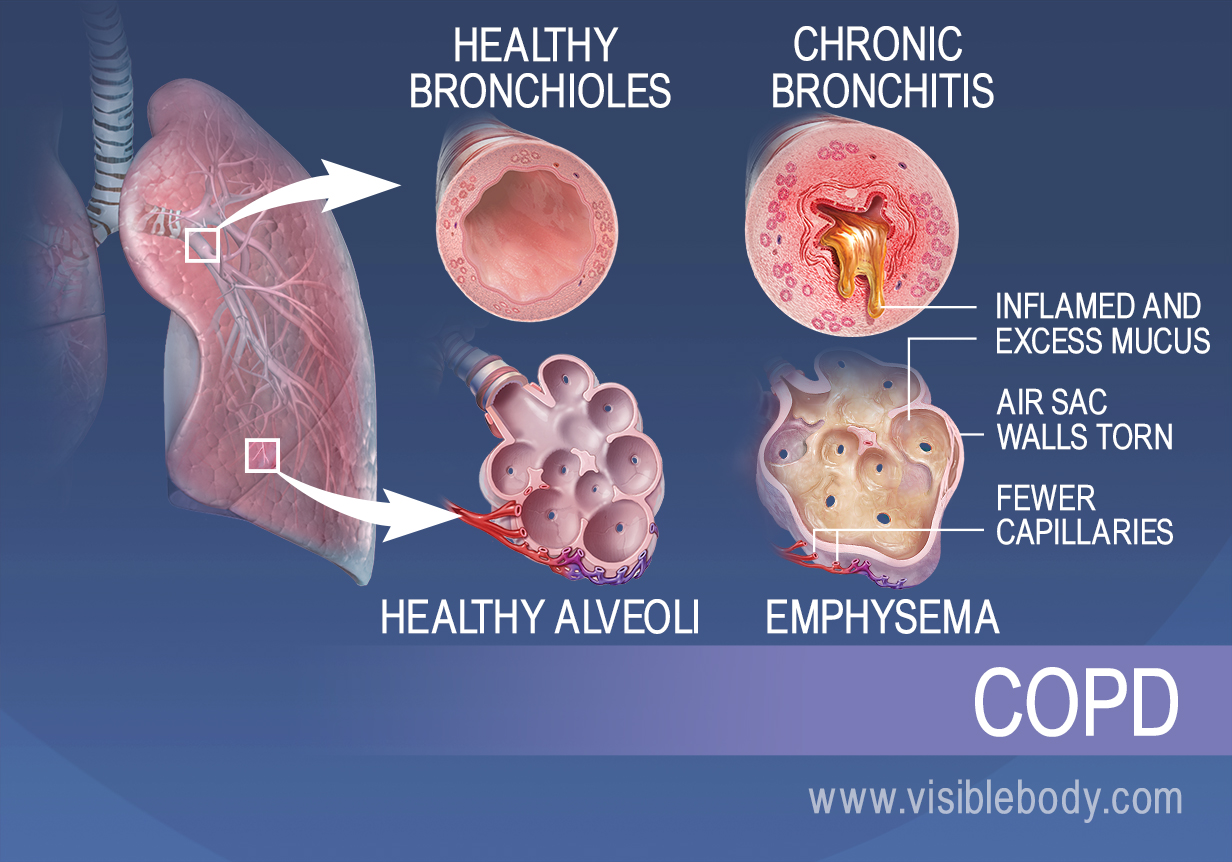 respiratory diseases and disorders